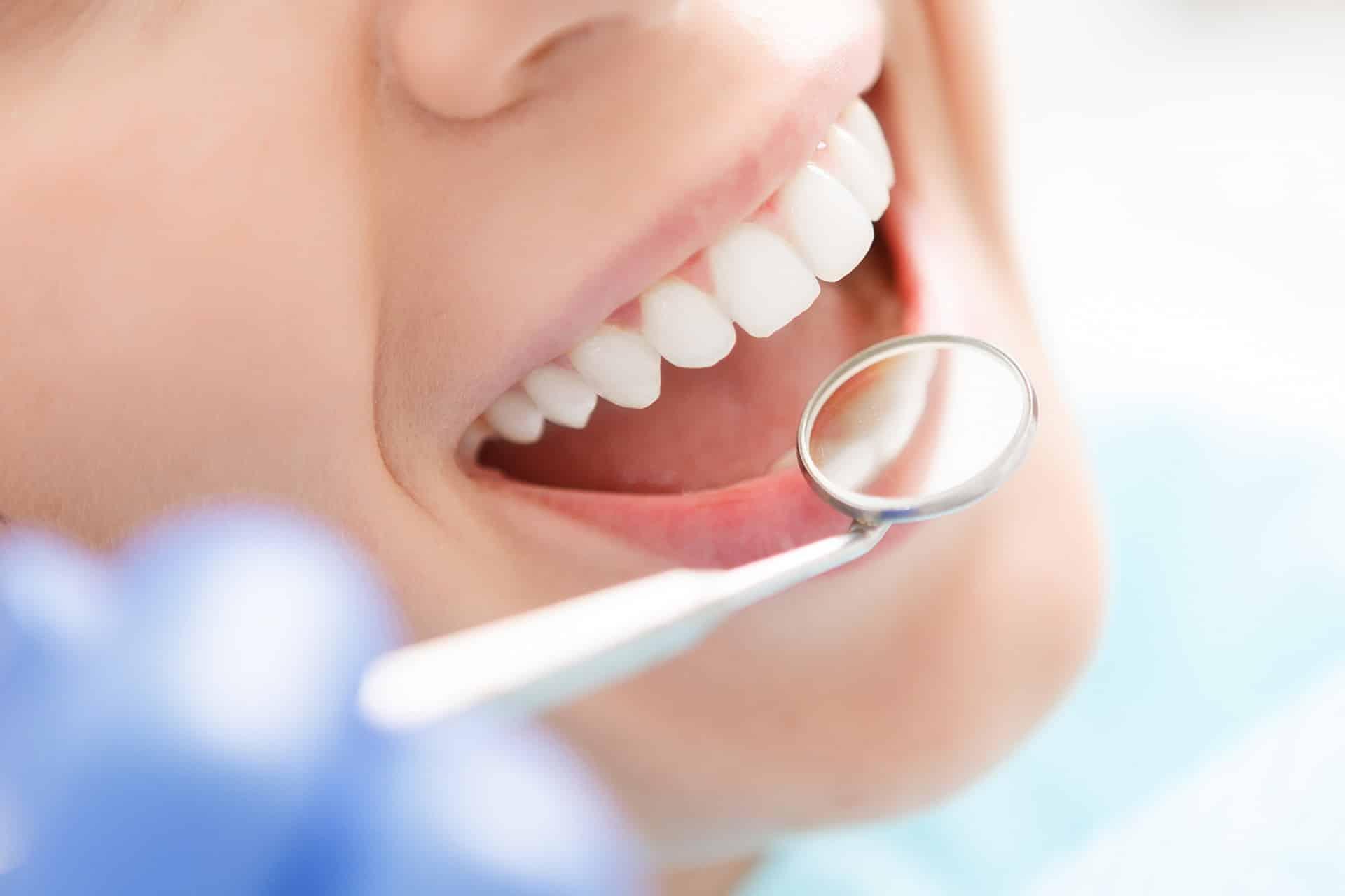 prevencion de la caries dental infantil