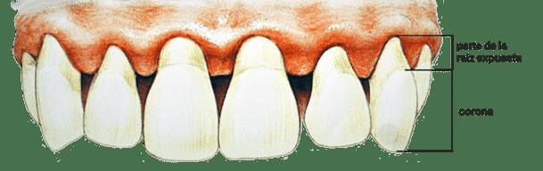 periodontitis y las enfermedades cardiovasculares