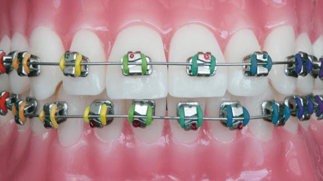 ortodoncia en valencia