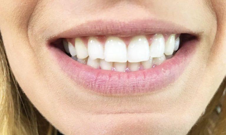 Cómo superar el miedo al dentista. Tu dentista en Valencia