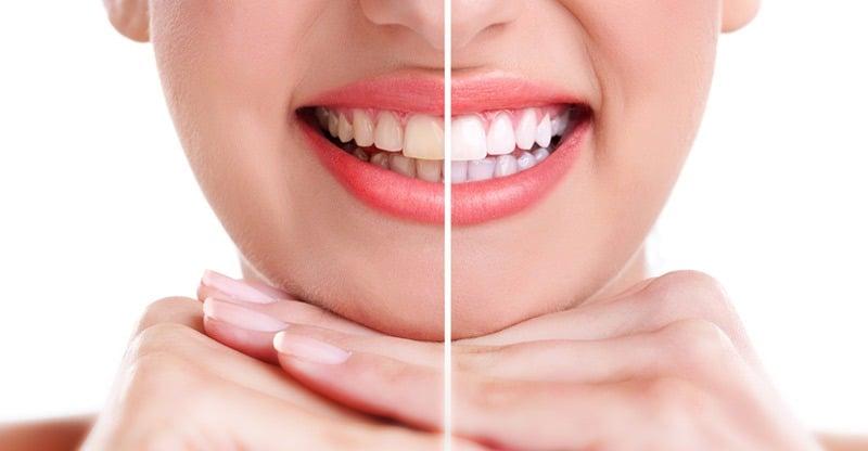 Blanqueamiento dental en C.O.V.