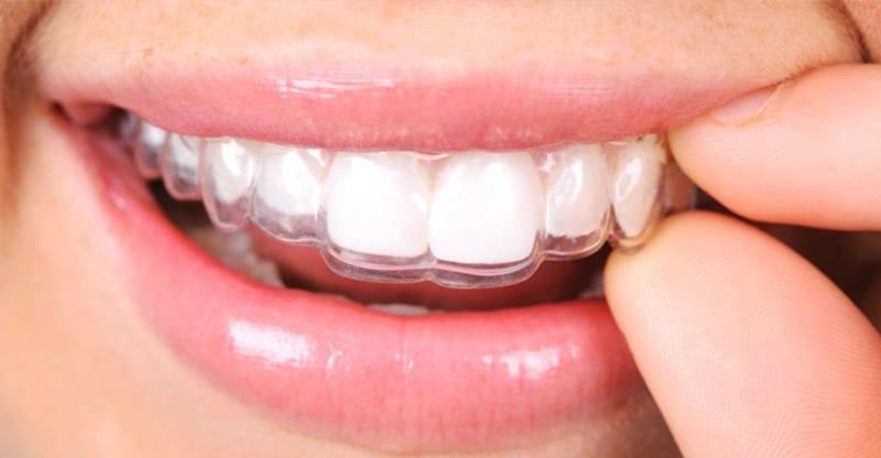 La ortodoncia - Centro odontologico valenciano