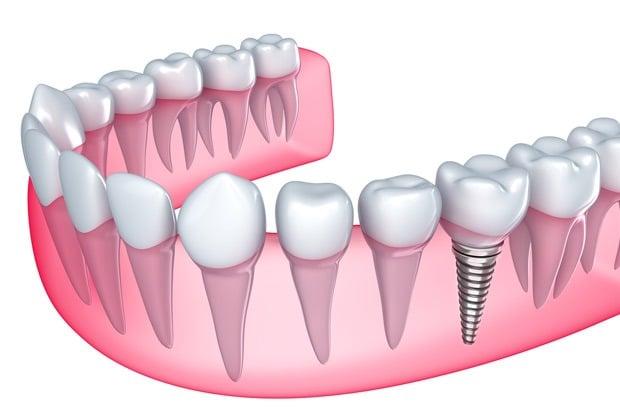 Esquema de implante - C.O.V