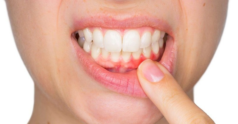 Periodonditis como prevenirla