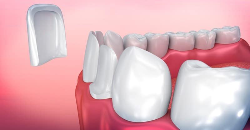 Carillas Dentales - Clinica COV