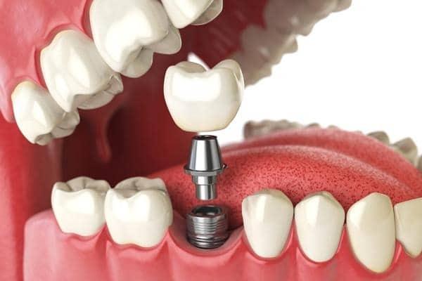 Prótesis dentales - Clínica cov