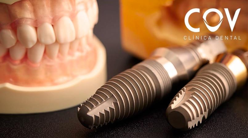 Cuidado Implantes Dentales